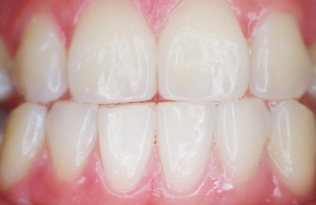 teeth-887338_1920